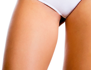 Medial-Thigh-procedure